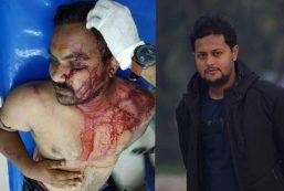 পিরোজপুরে ঠিকাদারকে কুপিয়ে জখম: ভাইস চেয়ারম্যানসহ ৭ জনের বিরুদ্ধে মামলা